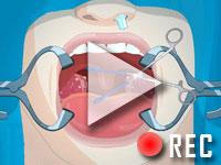 Operate now: Tonsil surgery Walktrough